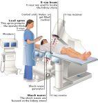 ESWL Extracorporeal shock wave lithotripsy - Litotripsia - Uroclinic Clinica Urologie-01